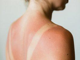 da bị cháy nắng lột da